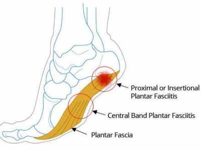 足底筋膜炎(运动康复)训练方法 浅谈足底筋膜炎运动疗法