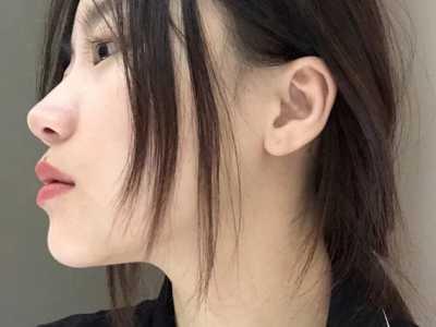 隆鼻之后剧烈运动肿了 隆鼻/鼻部多项之后多久才可以正常运动呢